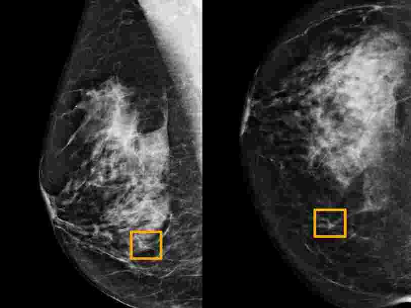 DeepMind de Google a créé une IA qui détecterait le cancer du sein mieux que les radiologues humains