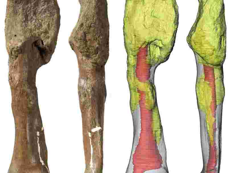 Des scientifiques ont diagnostiqué un cancer chez un dinosaure pour la première fois