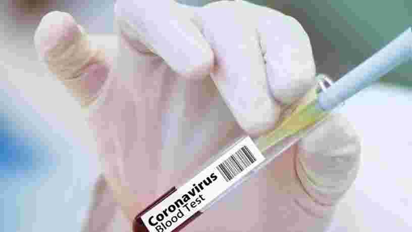 Un vaccin 'efficace à 90%' contre le Covid-19 doit faire l'objet d'une demande d'homologation d'ici fin novembre