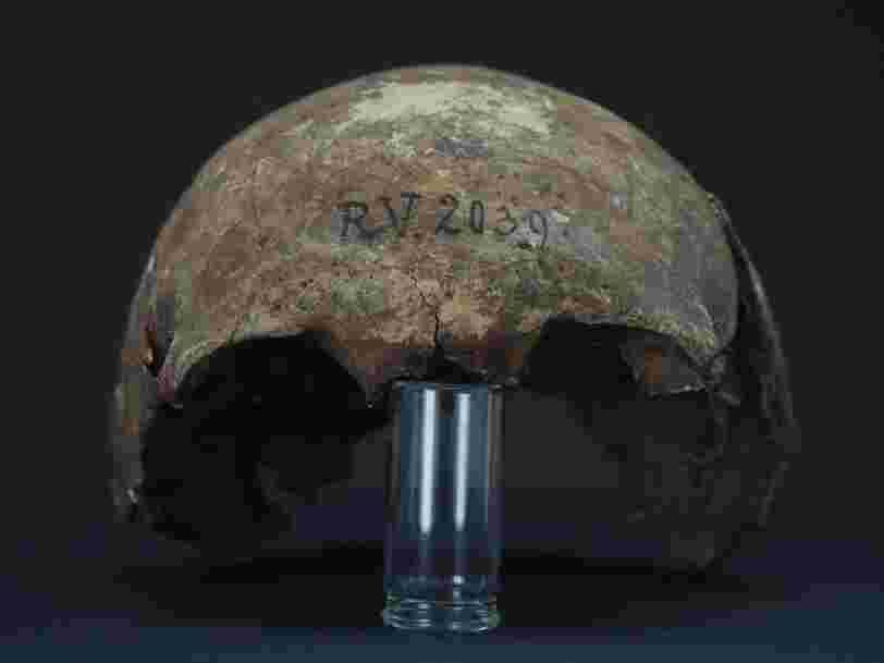 Une bactérie vieille de 5 000 ans découverte dans des ossements datant de l'âge de pierre