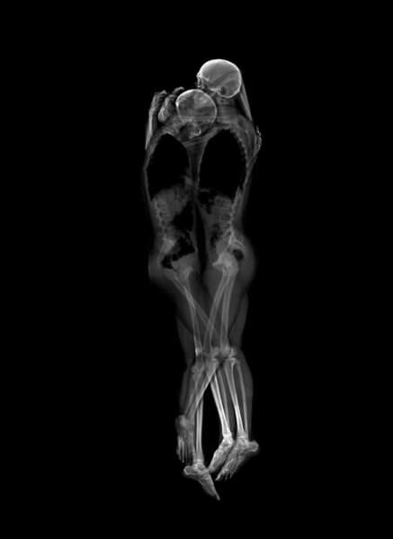 Un couple sous rayons X