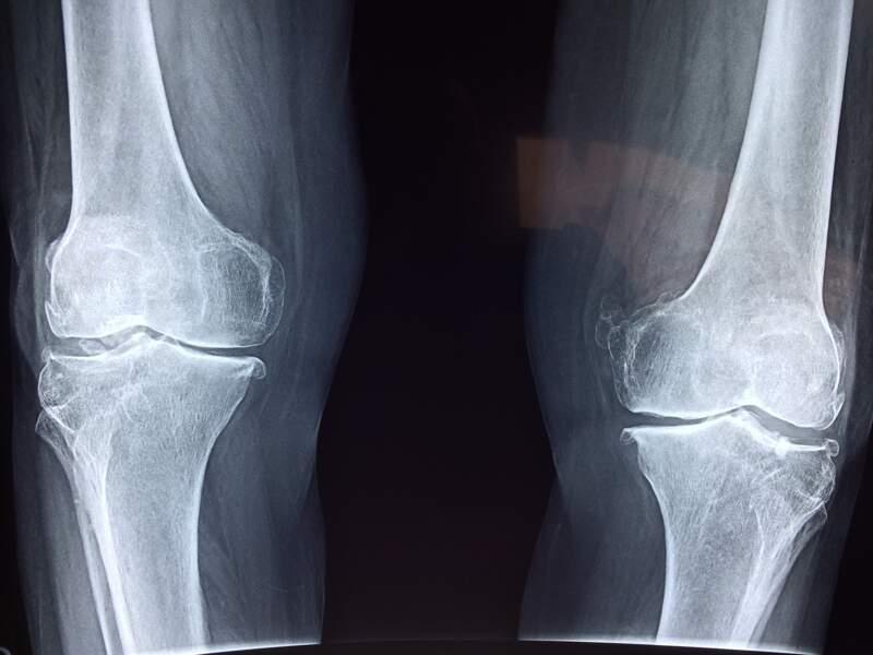 Les os : très légers, mais plus solides que du béton