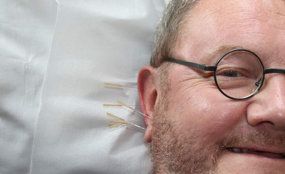 L'acupuncture : réguler l'excès de yang
