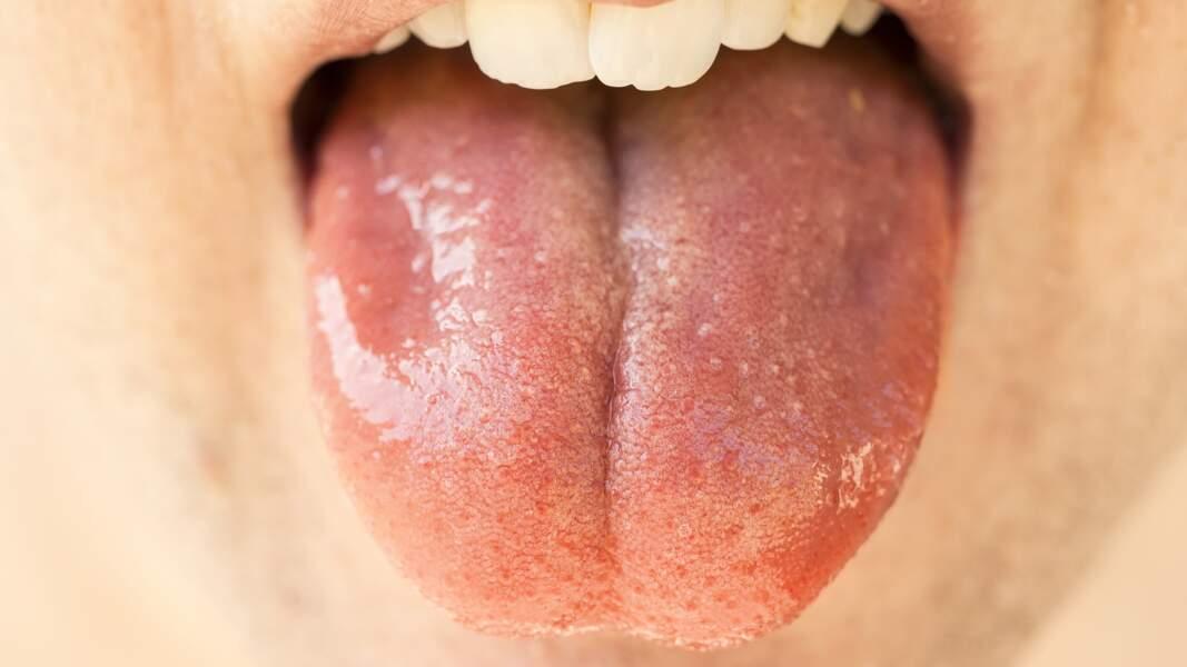 La salive : un antidouleur plus fort que la morphine