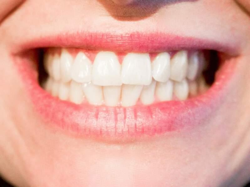 Les dents : elles donnent du goût aux aliments