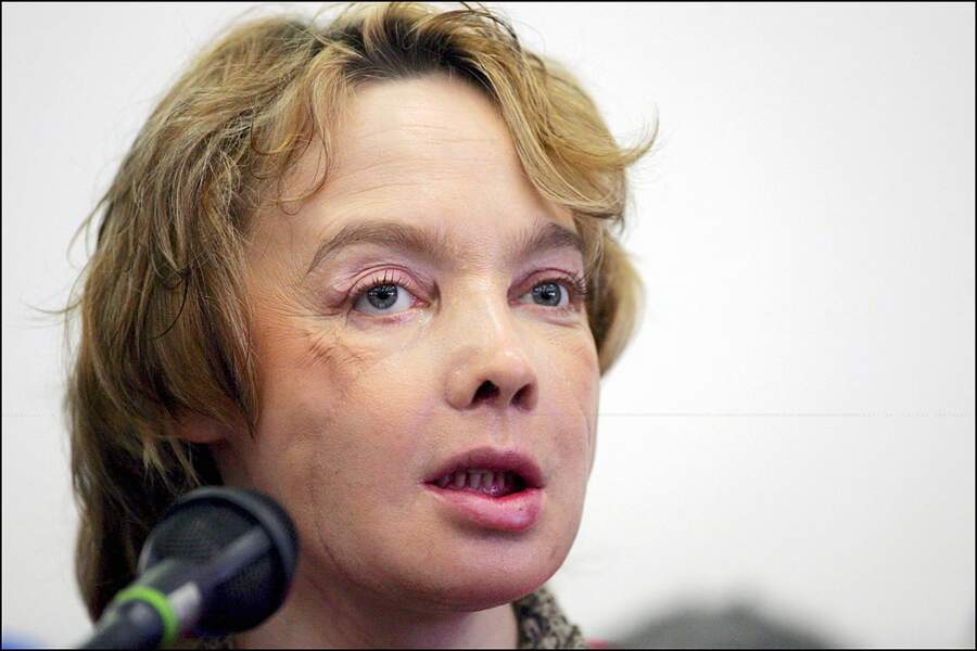 2005 Greffe du visage